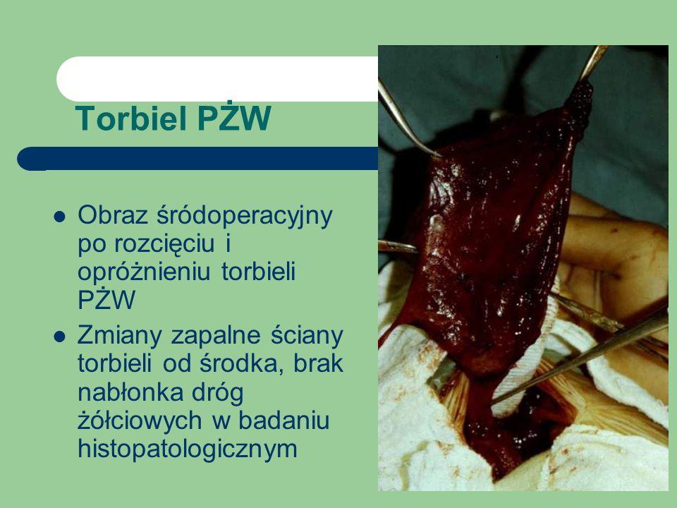 Torbiel PŻW Obraz śródoperacyjny po rozcięciu i opróżnieniu torbieli PŻW.