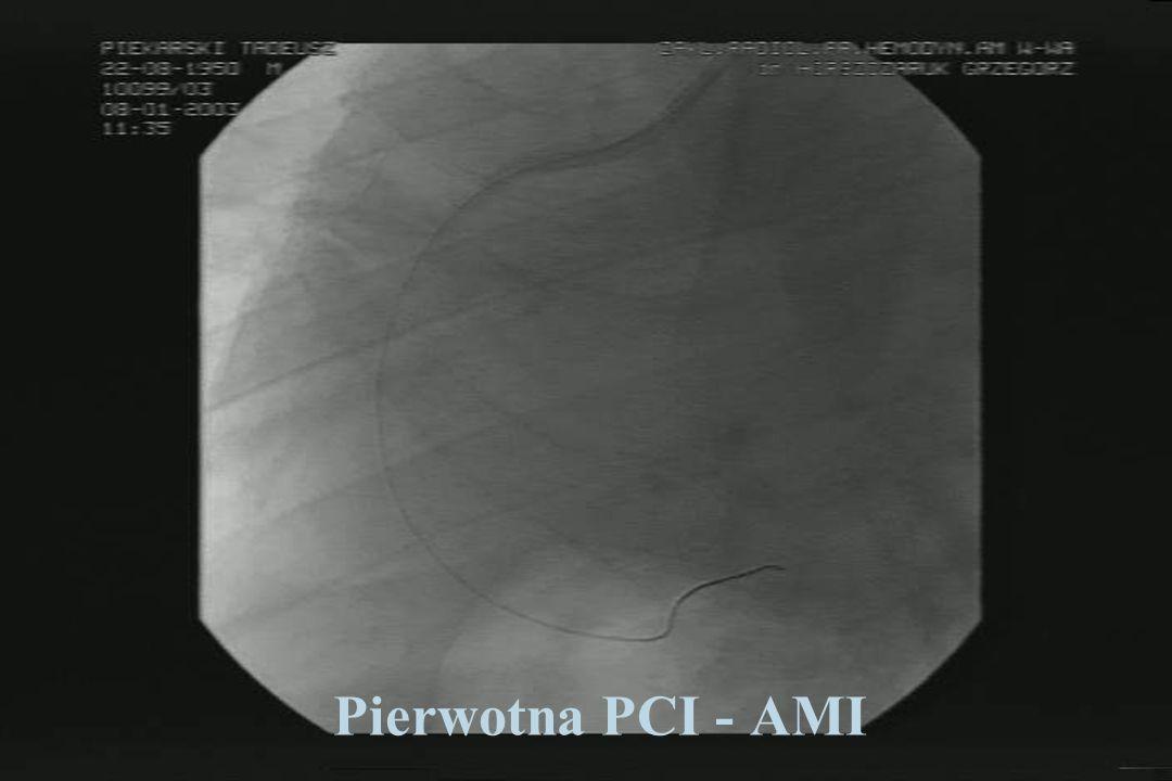 Pierwotna PCI - AMI