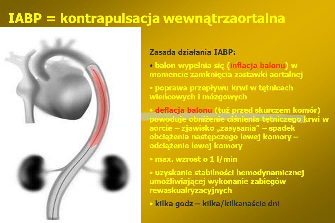 IABP = kontrapulsacja wewnątrzaortalna
