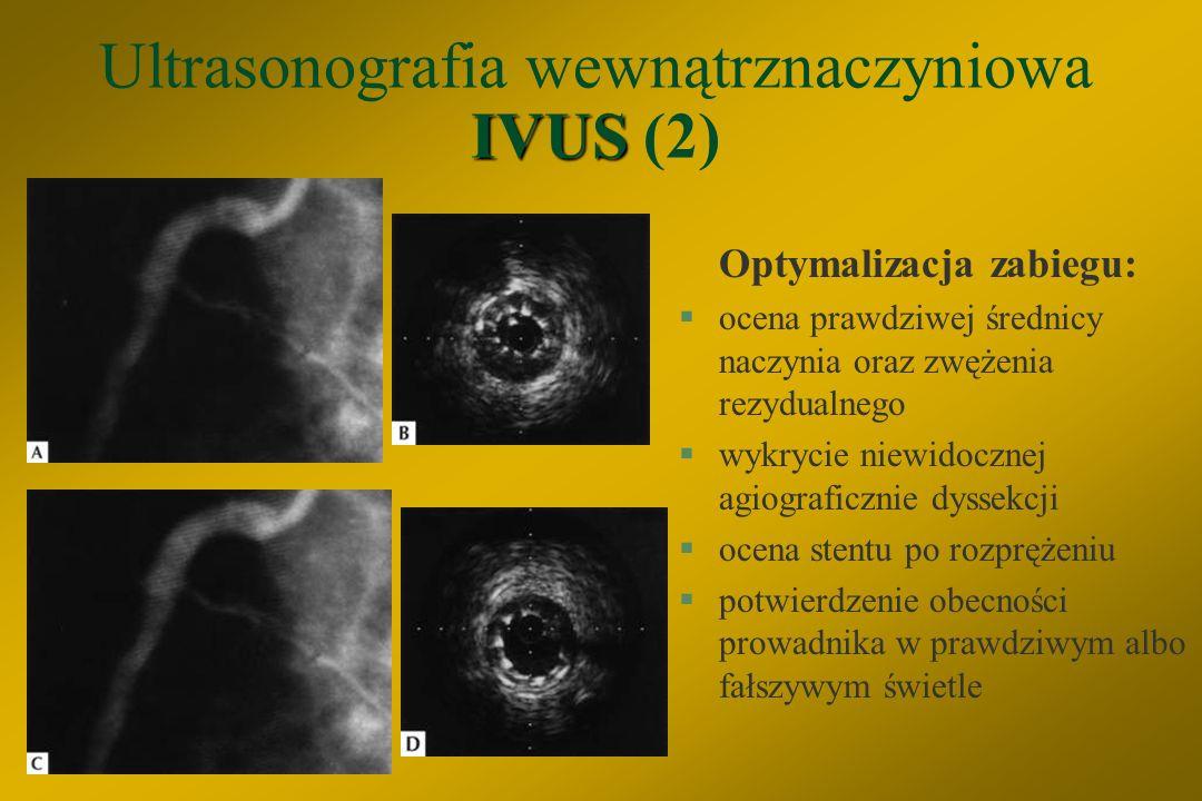 Ultrasonografia wewnątrznaczyniowa IVUS (2)
