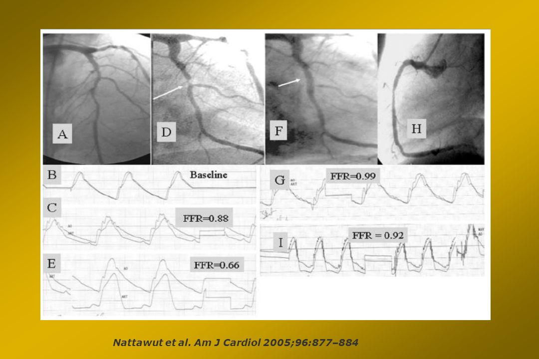 Nattawut et al. Am J Cardiol 2005;96:877–884