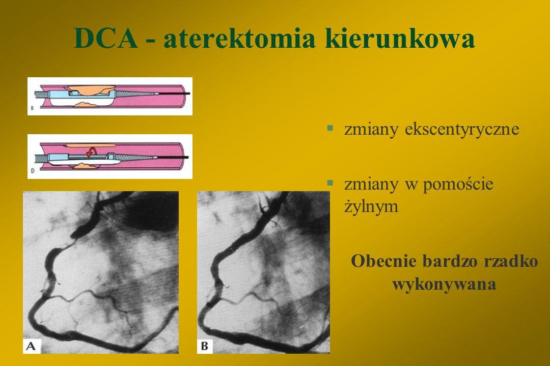 DCA - aterektomia kierunkowa