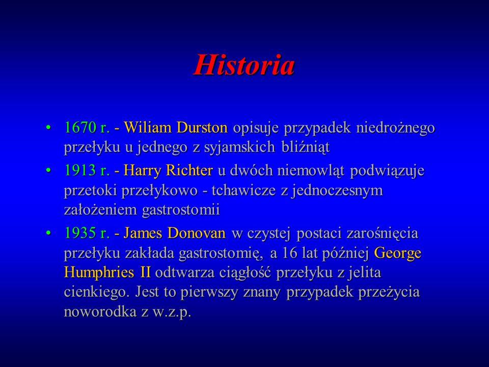 Historia 1670 r. - Wiliam Durston opisuje przypadek niedrożnego przełyku u jednego z syjamskich bliźniąt.