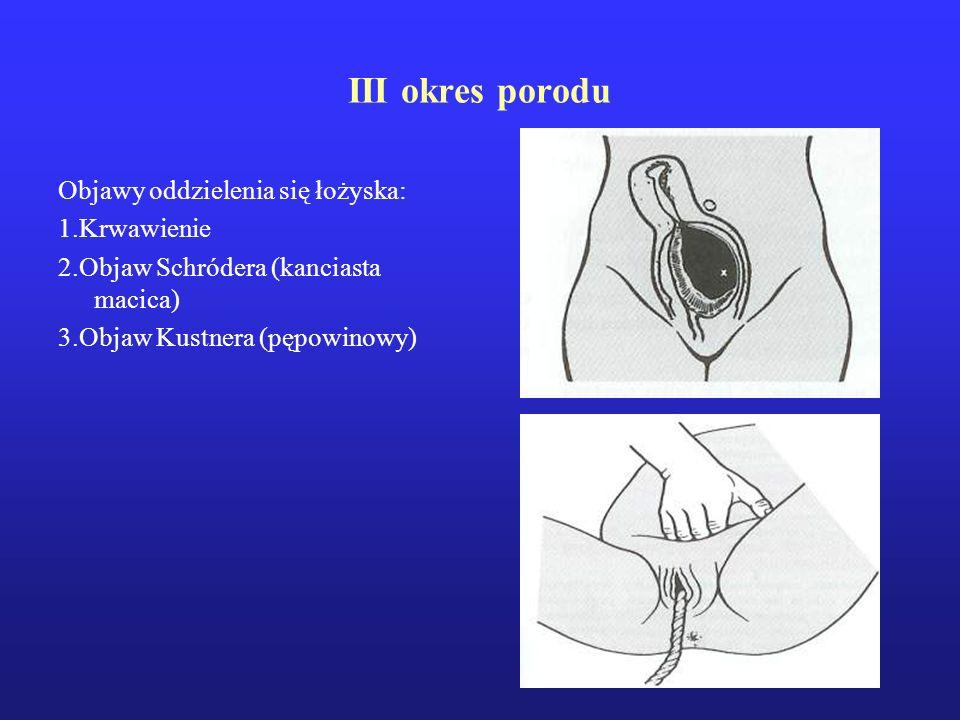 III okres porodu Objawy oddzielenia się łożyska: 1.Krwawienie