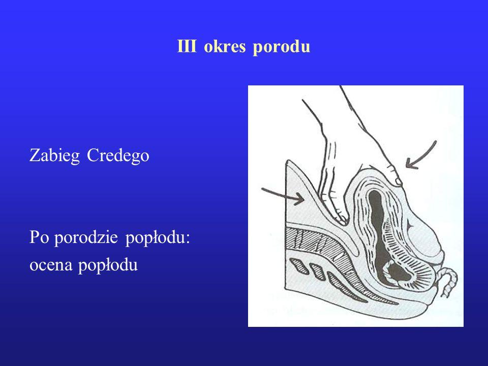 III okres porodu Zabieg Credego Po porodzie popłodu: ocena popłodu