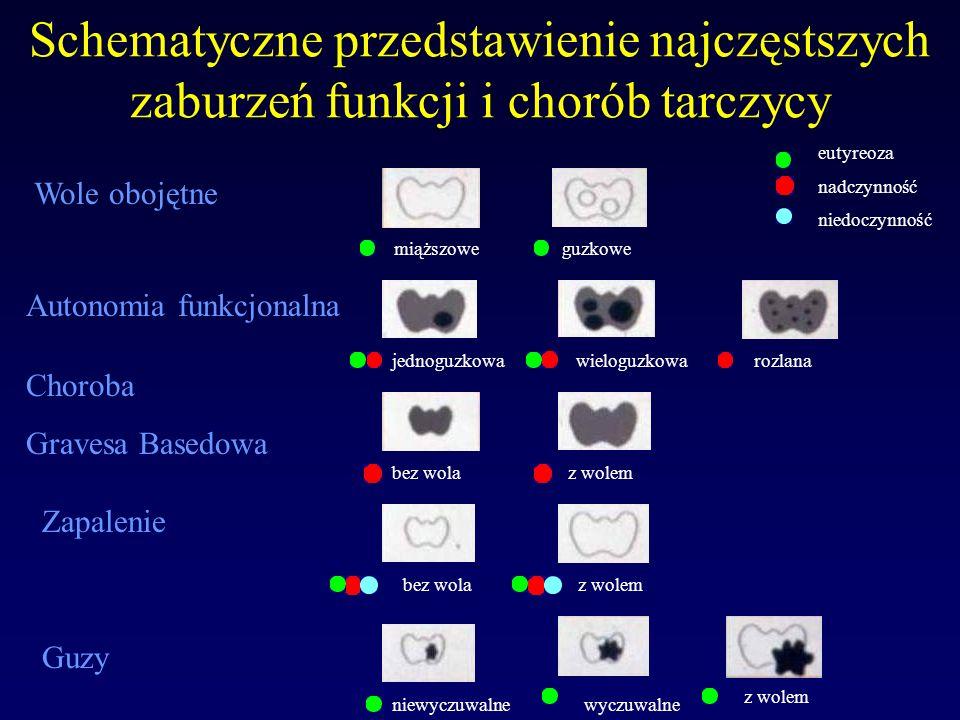 Schematyczne przedstawienie najczęstszych zaburzeń funkcji i chorób tarczycy
