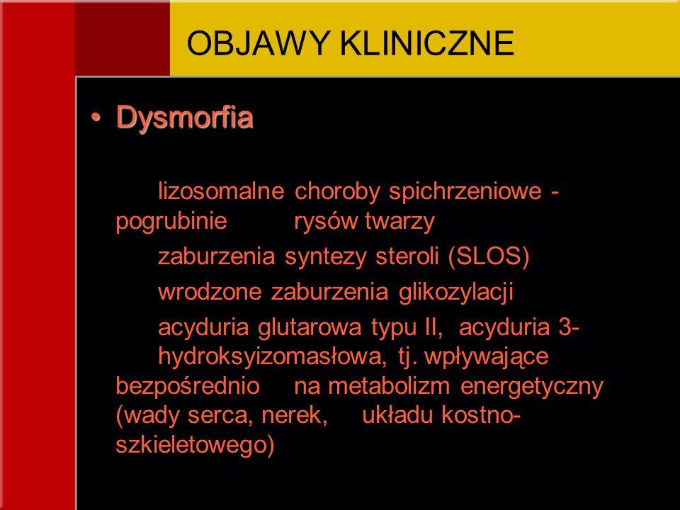 OBJAWY KLINICZNE Dysmorfia