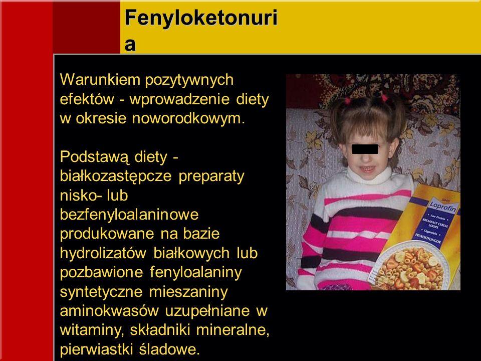 Fenyloketonuria Warunkiem pozytywnych efektów - wprowadzenie diety w okresie noworodkowym.