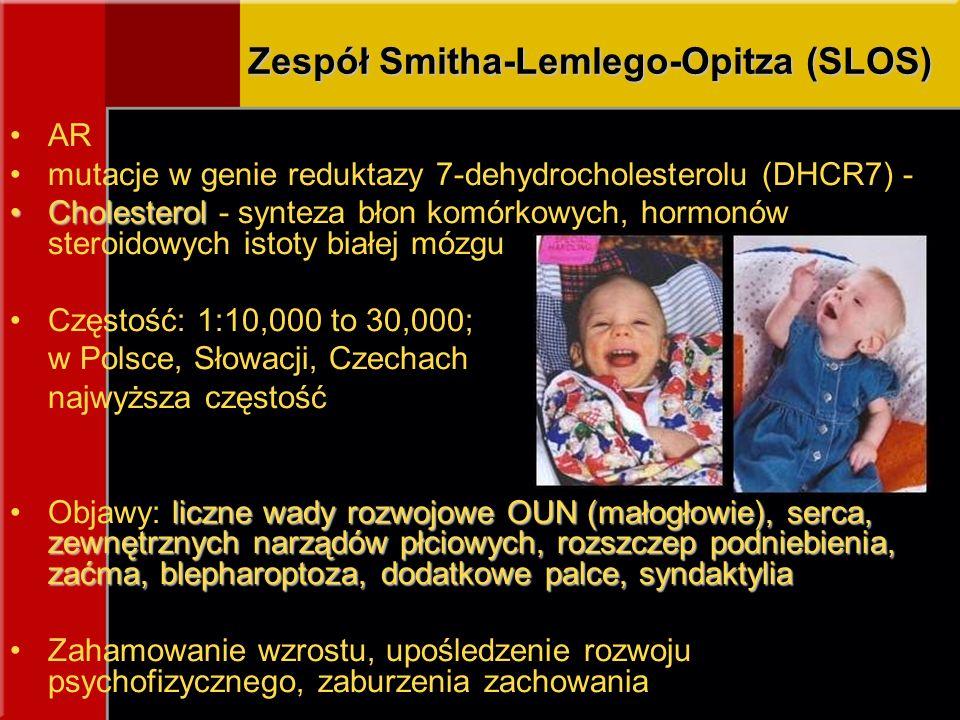 Zespół Smitha-Lemlego-Opitza (SLOS)