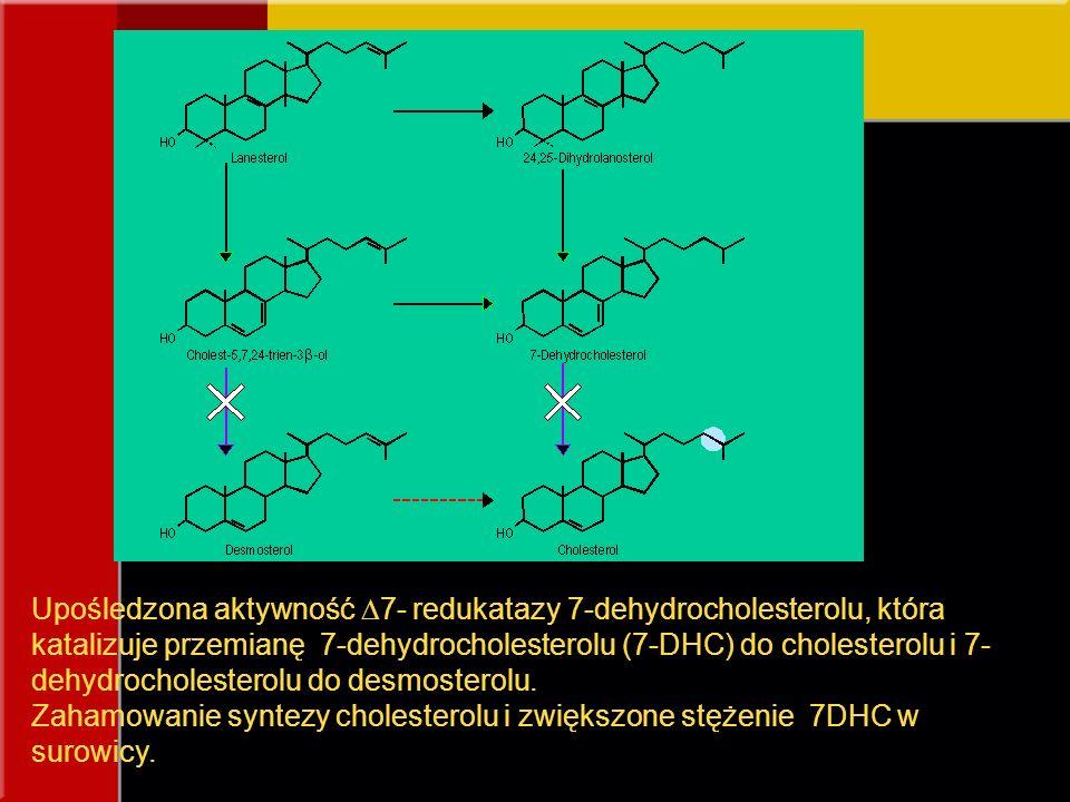 Upośledzona aktywność 7- redukatazy 7-dehydrocholesterolu, która katalizuje przemianę 7-dehydrocholesterolu (7-DHC) do cholesterolu i 7-dehydrocholesterolu do desmosterolu.