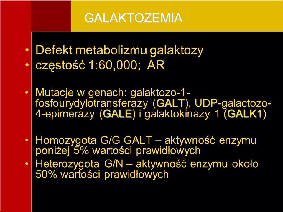 Defekt metabolizmu galaktozy częstość 1:60,000; AR
