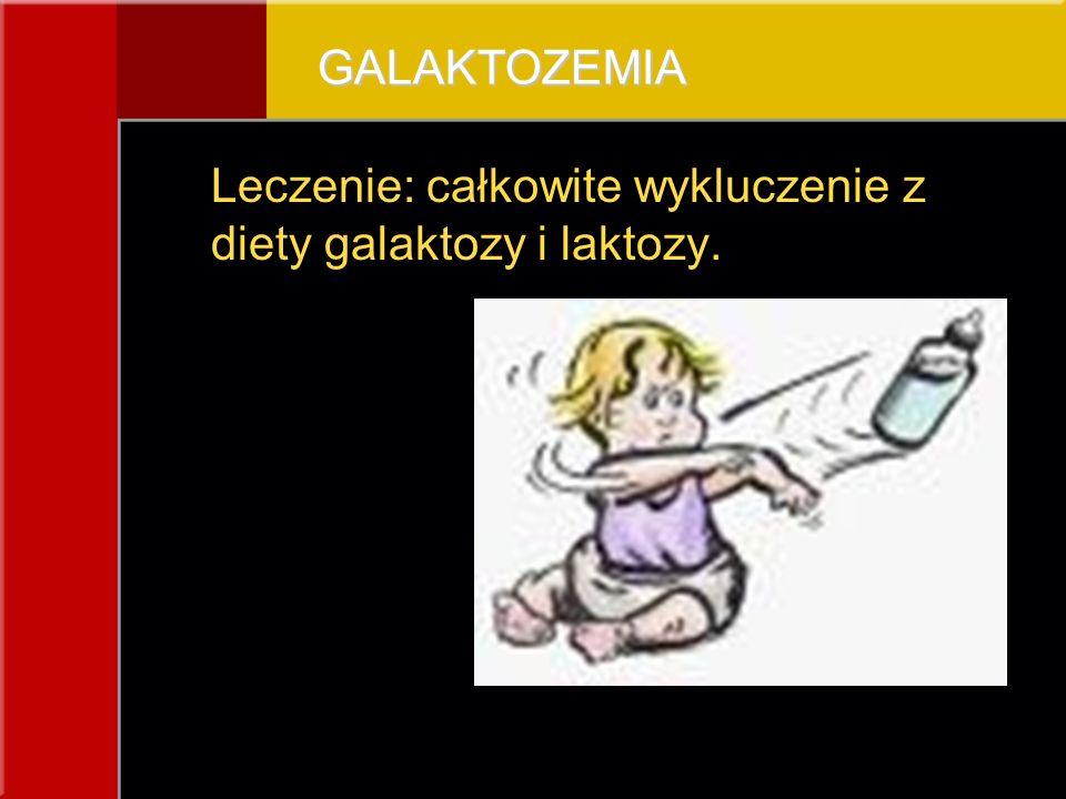 GALAKTOZEMIA Leczenie: całkowite wykluczenie z diety galaktozy i laktozy.