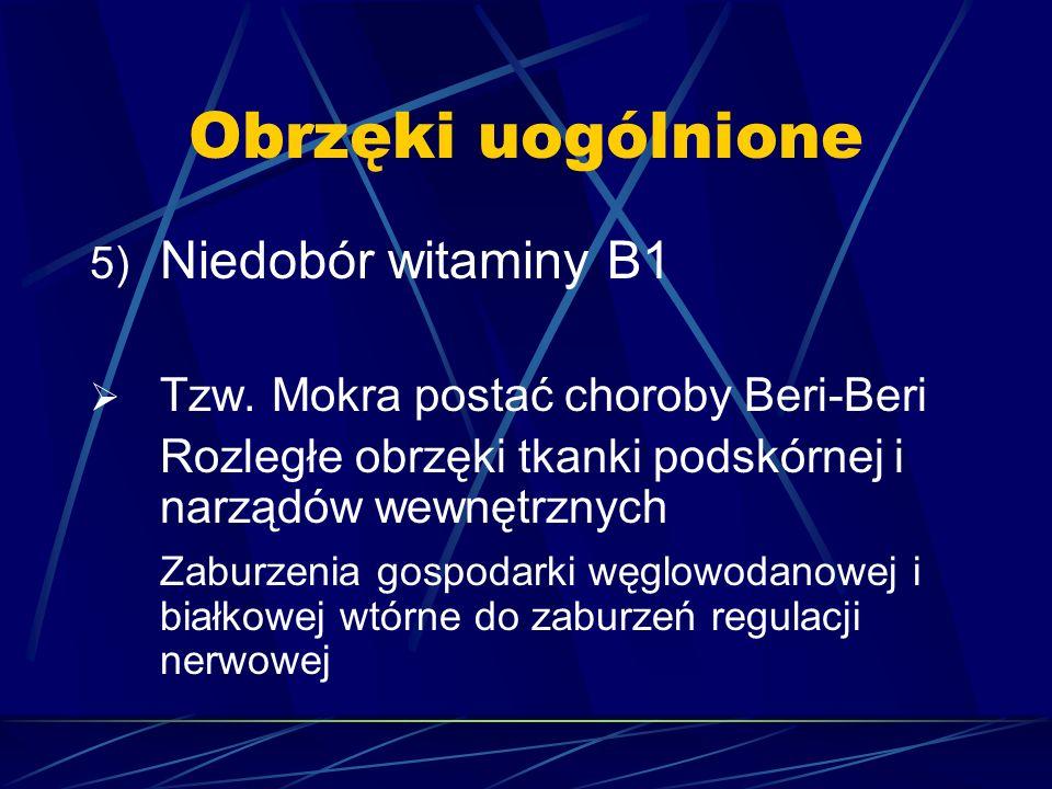 Obrzęki uogólnione Niedobór witaminy B1
