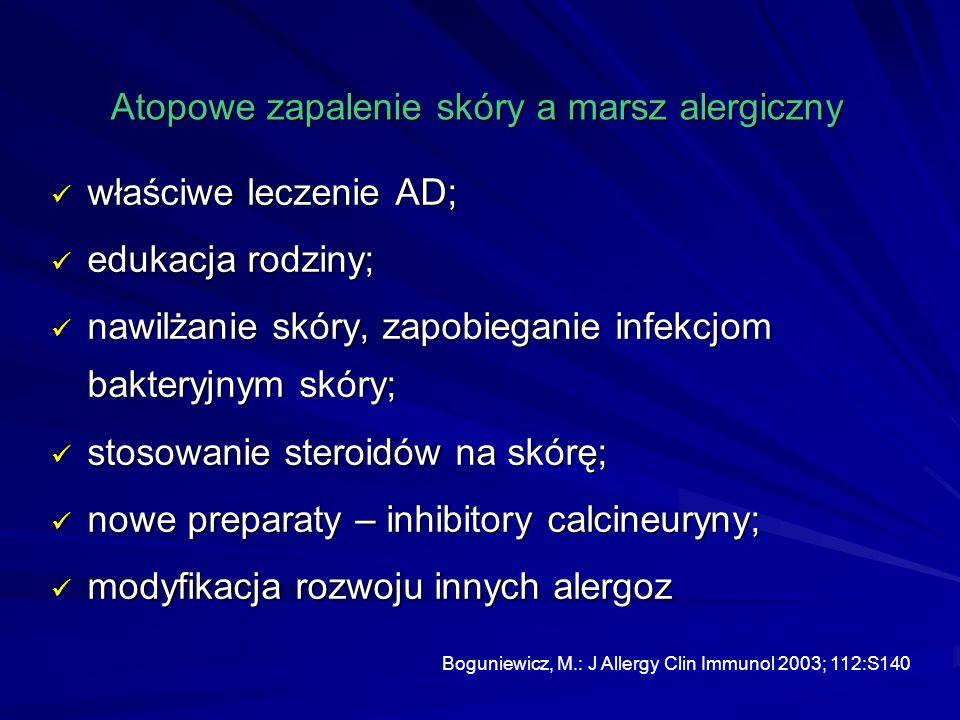 Atopowe zapalenie skóry a marsz alergiczny