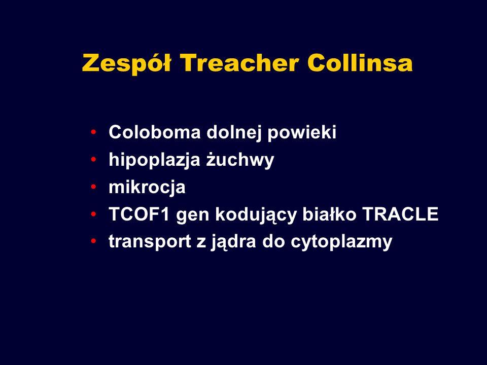 Zespół Treacher Collinsa