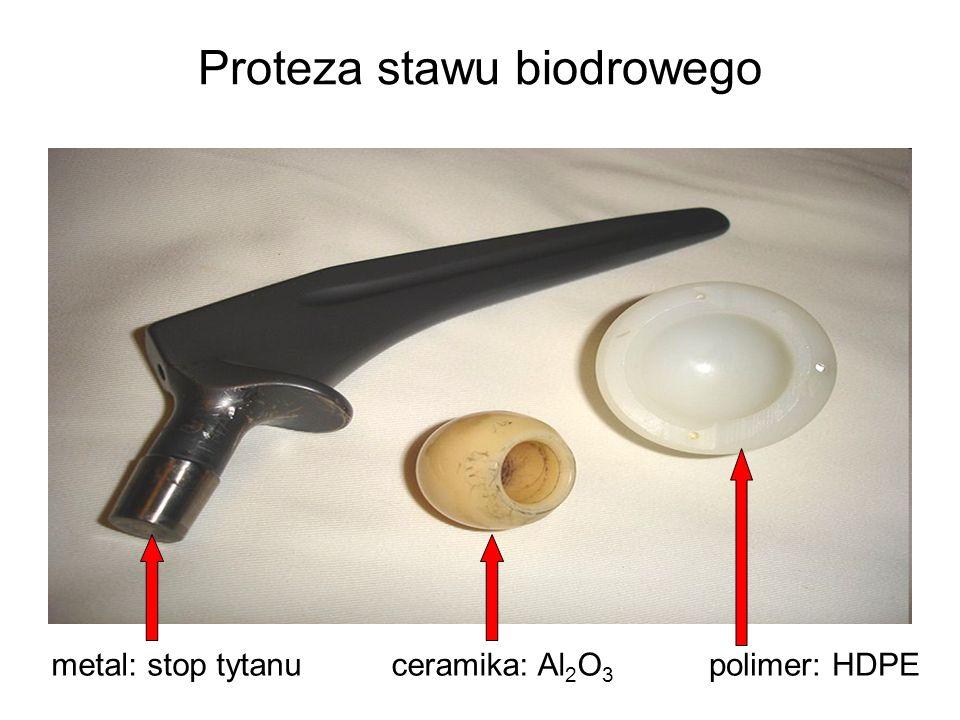 Proteza stawu biodrowego