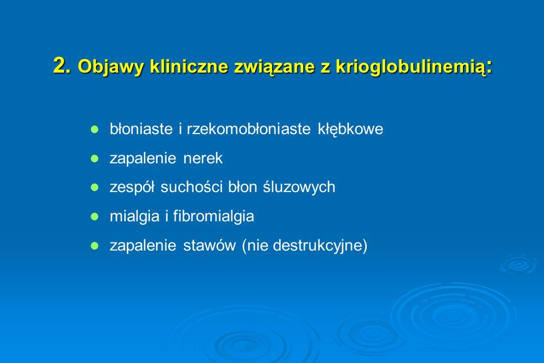 2. Objawy kliniczne związane z krioglobulinemią: