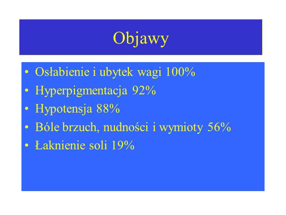 Objawy Osłabienie i ubytek wagi 100% Hyperpigmentacja 92%