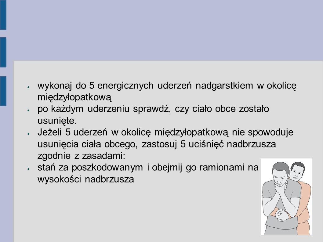 wykonaj do 5 energicznych uderzeń nadgarstkiem w okolicę międzyłopatkową