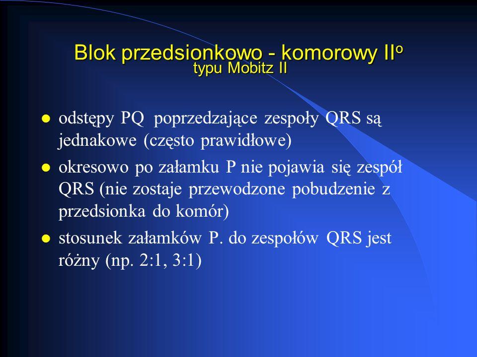 Blok przedsionkowo - komorowy IIo typu Mobitz II