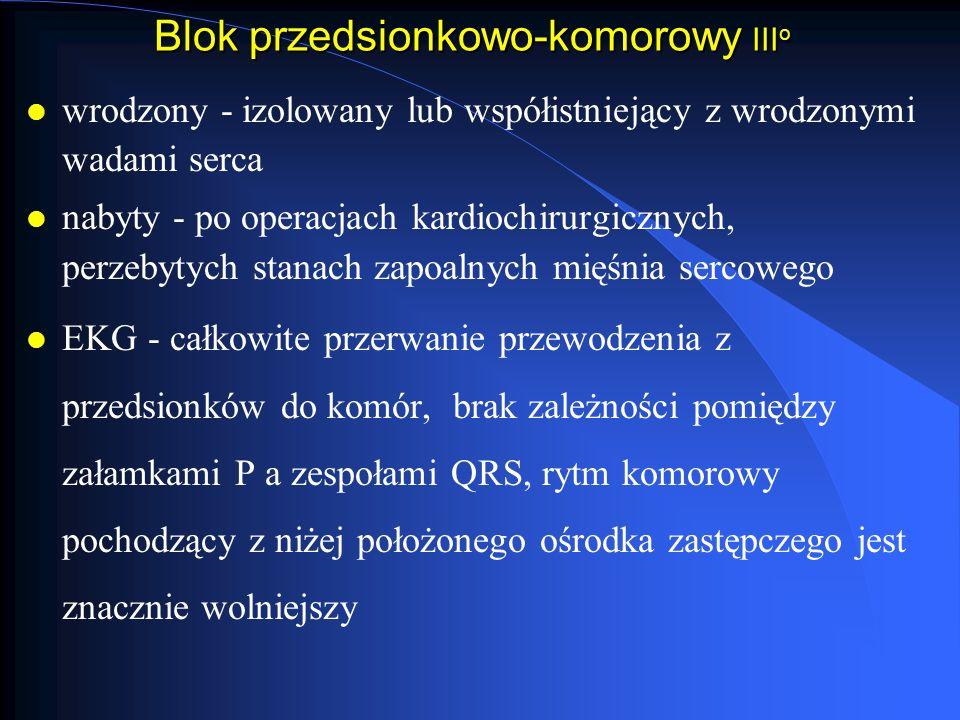 Blok przedsionkowo-komorowy IIIo