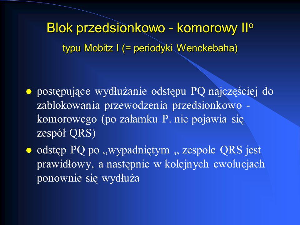 Blok przedsionkowo - komorowy IIo typu Mobitz I (= periodyki Wenckebaha)