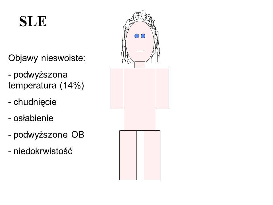 SLE Objawy nieswoiste: - podwyższona temperatura (14%) - chudnięcie