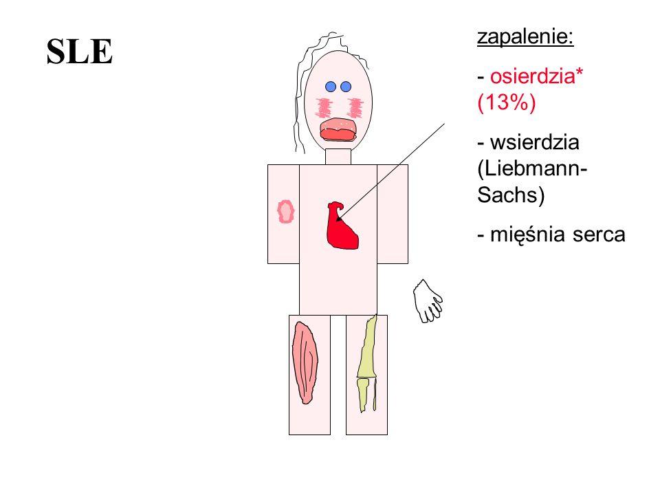 SLE zapalenie: - osierdzia* (13%) - wsierdzia (Liebmann-Sachs)