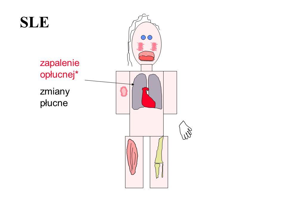 SLE zapalenie opłucnej* zmiany płucne
