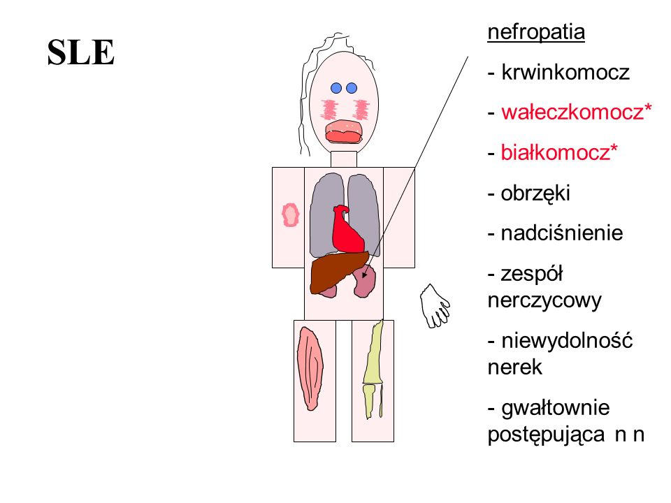 SLE nefropatia krwinkomocz wałeczkomocz* - białkomocz* - obrzęki