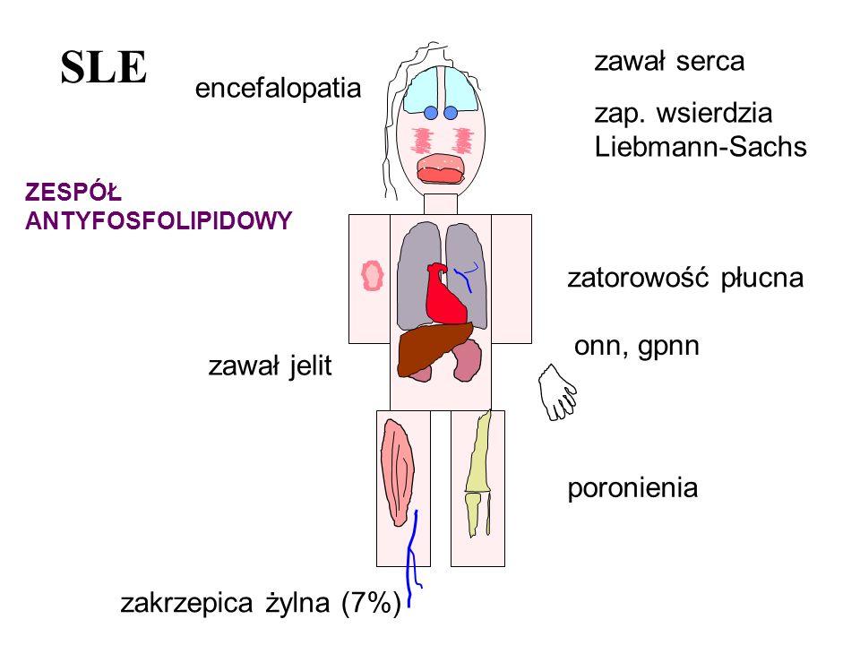 SLE zawał serca zap. wsierdzia Liebmann-Sachs encefalopatia