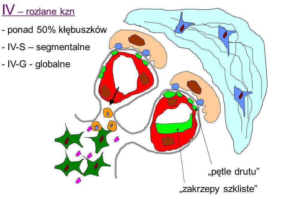 IV – rozlane kzn - ponad 50% kłębuszków - IV-S – segmentalne