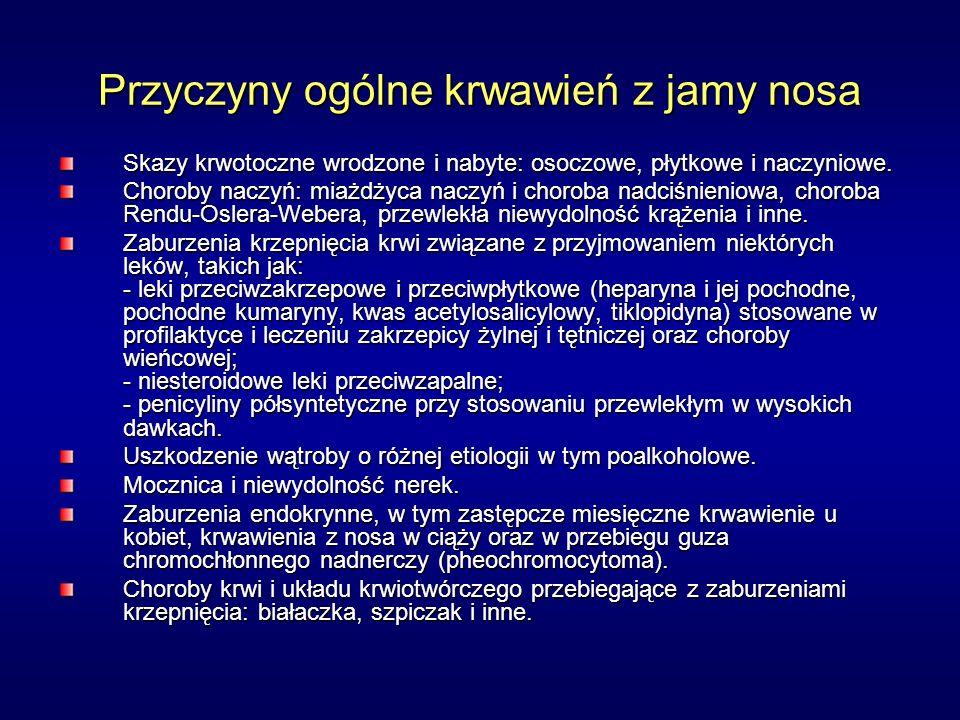 Przyczyny ogólne krwawień z jamy nosa