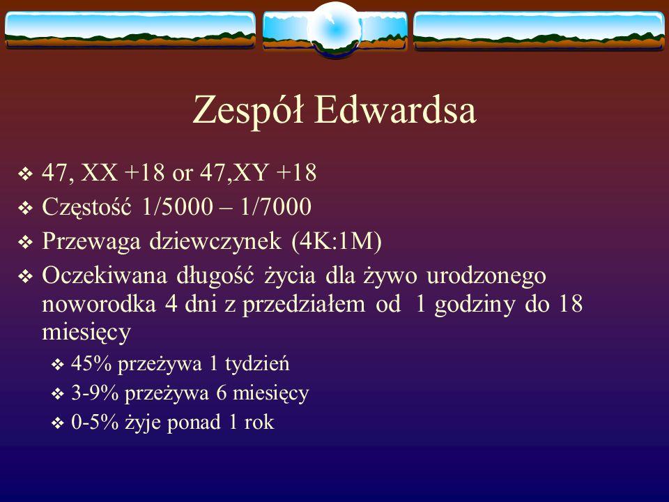 Zespół Edwardsa 47, XX +18 or 47,XY +18 Częstość 1/5000 – 1/7000