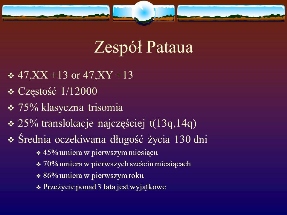 Zespół Pataua 47,XX +13 or 47,XY +13 Częstość 1/12000