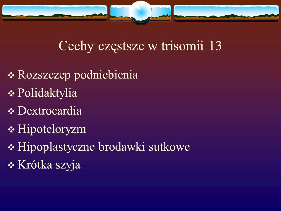 Cechy częstsze w trisomii 13