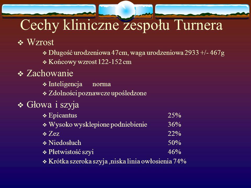 Cechy kliniczne zespołu Turnera