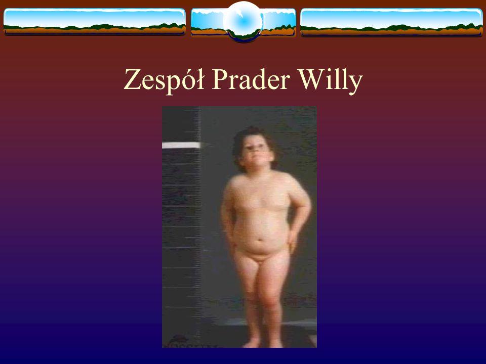 Zespół Prader Willy