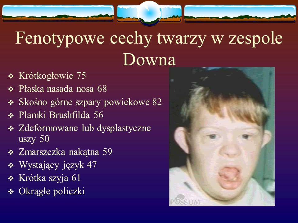 Fenotypowe cechy twarzy w zespole Downa