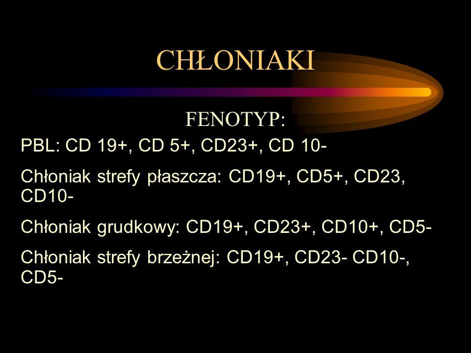 CHŁONIAKI FENOTYP: PBL: CD 19+, CD 5+, CD23+, CD 10-
