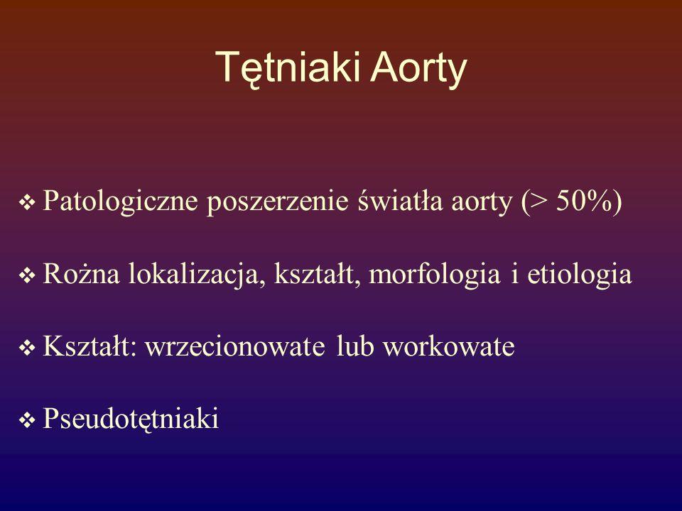 Tętniaki Aorty Patologiczne poszerzenie światła aorty (> 50%)