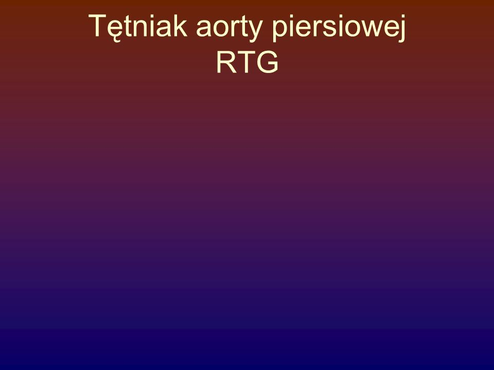 Tętniak aorty piersiowej RTG