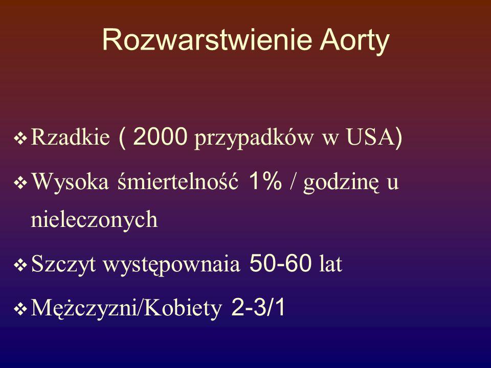 Rozwarstwienie Aorty Rzadkie ( 2000 przypadków w USA)