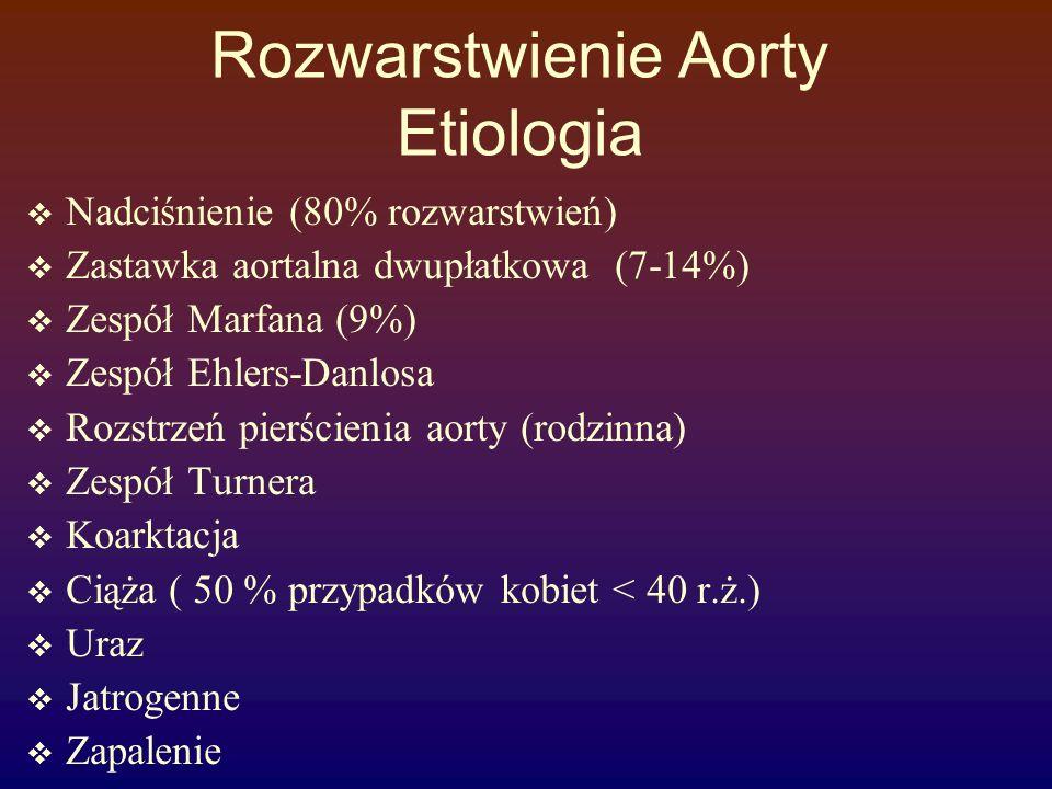Rozwarstwienie Aorty Etiologia