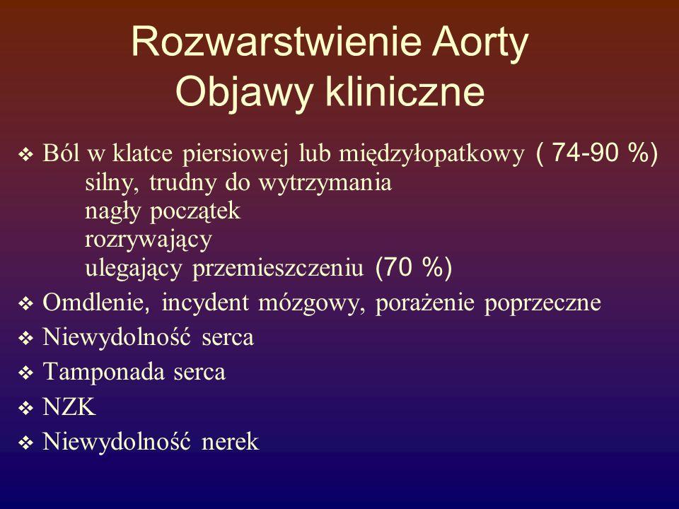 Rozwarstwienie Aorty Objawy kliniczne