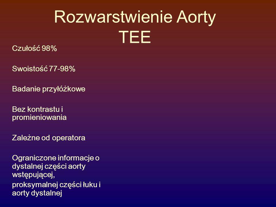 Rozwarstwienie Aorty TEE