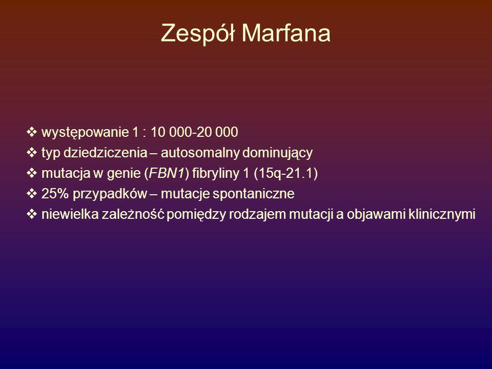 Zespół Marfana występowanie 1 : 10 000-20 000