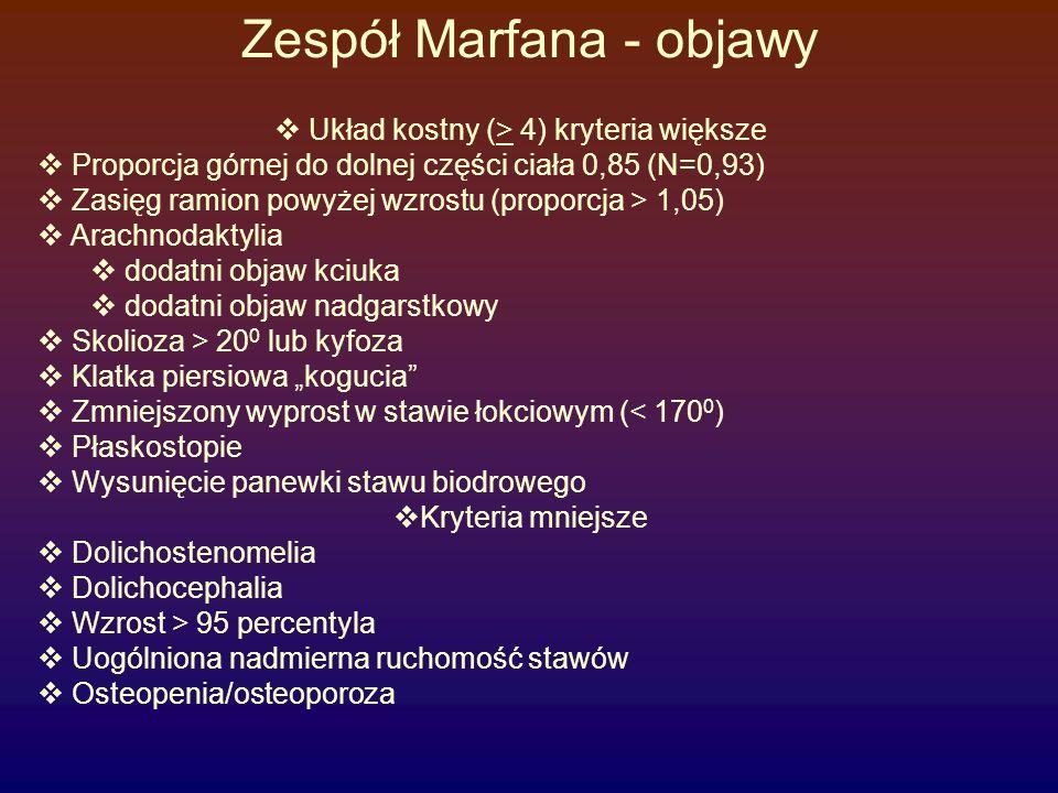 Zespół Marfana - objawy