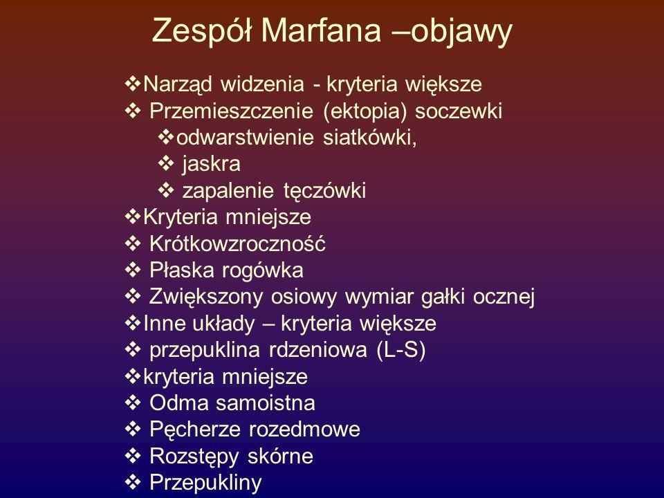 Zespół Marfana –objawy