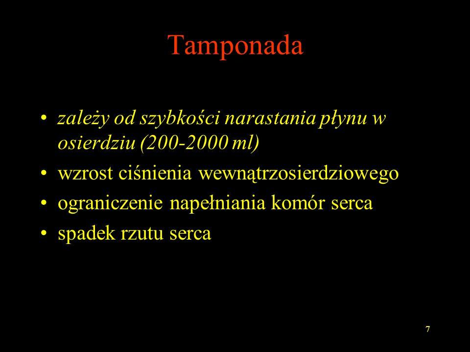 Tamponada zależy od szybkości narastania płynu w osierdziu (200-2000 ml) wzrost ciśnienia wewnątrzosierdziowego.